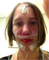 Brooke at a sleep clinic - selfie with tape on her face